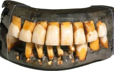 George Washington's Dentures