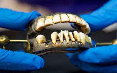 Washington's dentures have been carefully preserved.