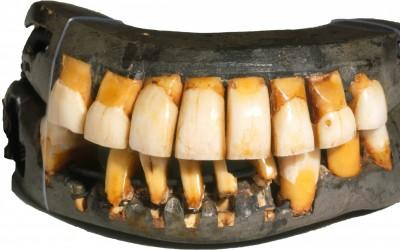 Washington's dentures were made from metal, human teeth, cow teeth, and elephant ivory.